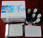 IRAK1,原装人白介素1受体相关激酶1ELISA试剂盒