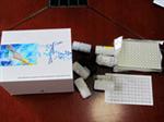 人肺表面活性物质相关蛋白C,SP-C,ELISA试剂盒