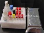 人丙酮酸激酶(PK)