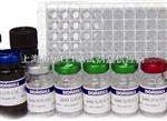 人Ⅰ型胶原交联羧基末端肽(ⅠCTP)