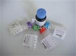 肾上腺皮质发育异常蛋白抗体