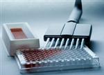 免疫球蛋白人ELISA试剂盒