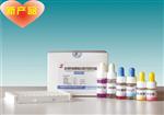 脂肪酸结合蛋白 (FABP)放免试剂盒检测服务