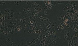 人大细胞肺癌细胞NCI-H460